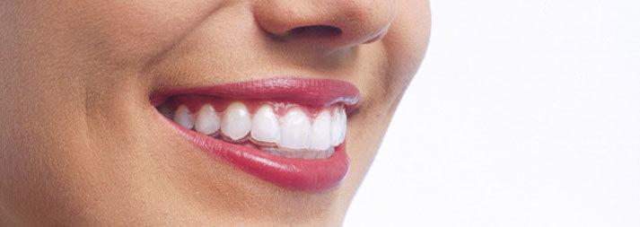 Schöne und gesunde Zähne ein Leben lang mit Dr. Gisela Rampold   Zahnärztin