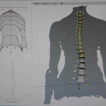 Spinometria